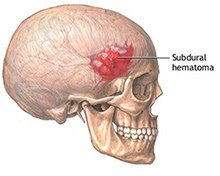 Brain Hemorrhage Symptoms