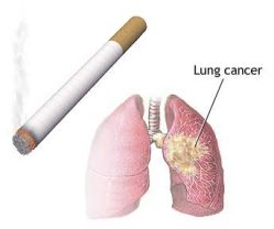 Smoking Causes Lung Cancer