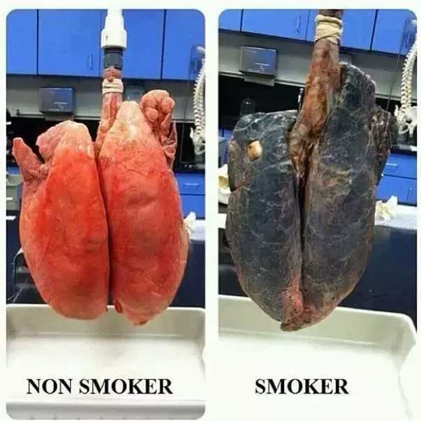 Effect of Smoking on Lungs